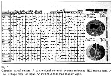 Topographic Brain Mapping of EEG and Evoked Potentials in